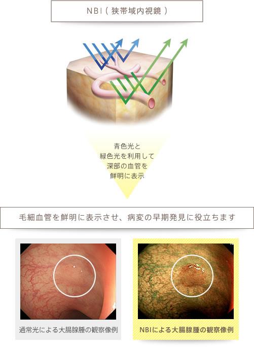 青色光と緑色光を利用して深部の血管を鮮明に表示