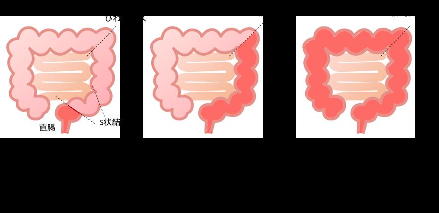 結腸 炎 と は 症状